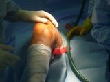 Náhrada kolenního kloubu - Koleno před operací