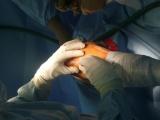 Operace kolenního kloubu - Incize