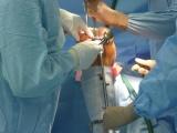 Totální náhrada kolenního kloubu - Zatlučení pinu - Tibie