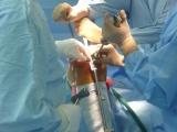 Totální náhrada kolenního kloubu - Vytlučení pinu