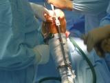 Totální náhrada kolenního kloubu - Připravená tibiální řezací šablona