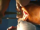 Úplná náhrada kolenního kloubu - Preparace konce holenní kosti