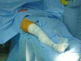 Operace kyčelního kloubu - Zarouškovaná končetina