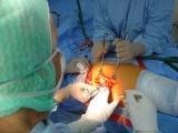 Úplná náhrada kyčelního kloubu - Zastavení krvácení