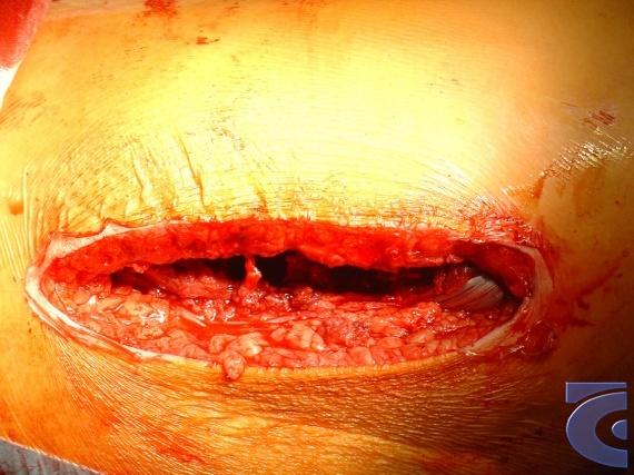 Průběh operace kyčelního kloubu - Pohled na místo implantace